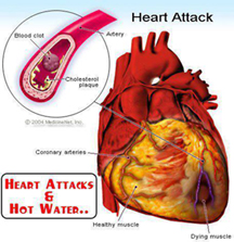 Heart Pain After Eating Oily Food